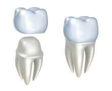 Sistova Road dentists - dental crowns
