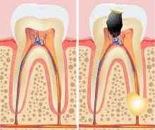 dentists in balham - root canal treatments