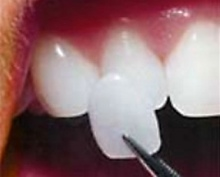 Sistova Road dentists - veneers