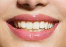 teeth whitening in balham