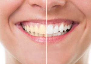 Teeth Whitening at Sistova Road Dental Studio