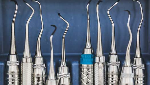 Why tooth extraction might be necessary?