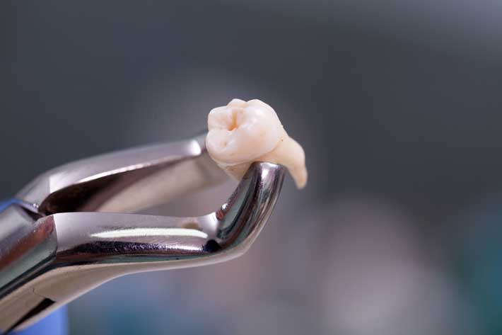 Did you know? 15 interesting facts about teeth.