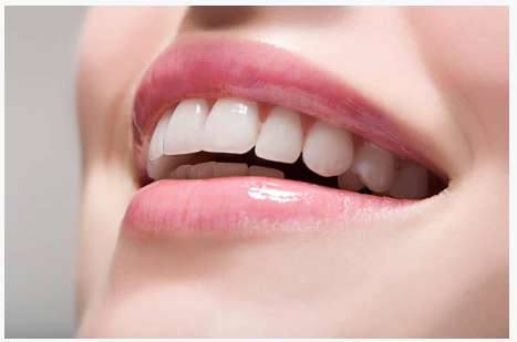 Teeth whitening – all you need to know.